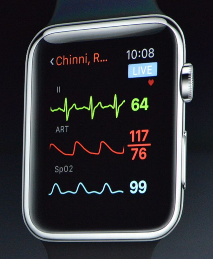 Apple watch sparklines